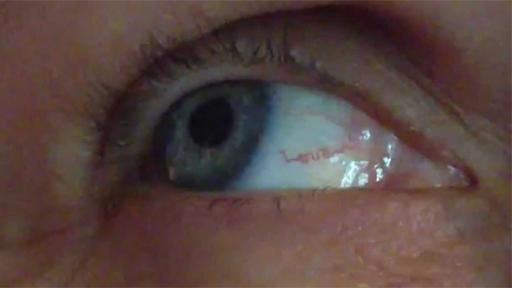 Amor en el ojo